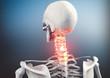 Leinwanddruck Bild - Nackenschmerzen