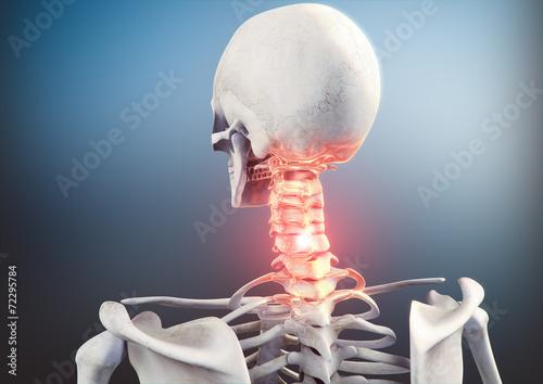 Leinwanddruck Bild Nackenschmerzen