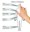 Effects of diabetes