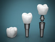 Dental implants - 72351921