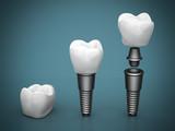 Dental implants - 72351921