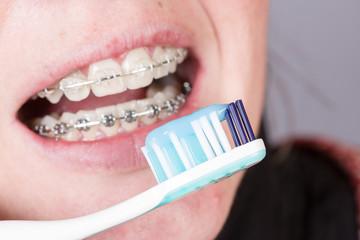 Zahnklammer und Zahnbürste