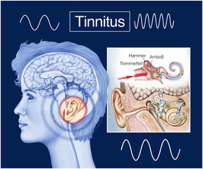 Tinnitus.Ohrgeräusche.Hörsturz