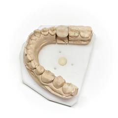 Calco per la capsula dentale
