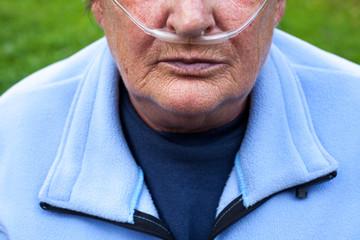 Elderlay woman with oxygen suplement (COPD)