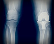 Bicompartmental knee prosthesis xray - 72447185
