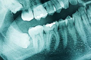 Panoramic Dental X-Ray Of Human Teeth