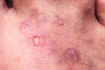 closeup skin athlete's foot psoriasis fungus, hong kong foot,