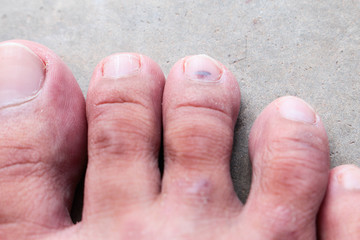closeup skin athlete's foot psoriasis fungus, hong kong foot,
