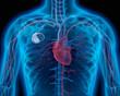Leinwanddruck Bild - Herzschrittmacher