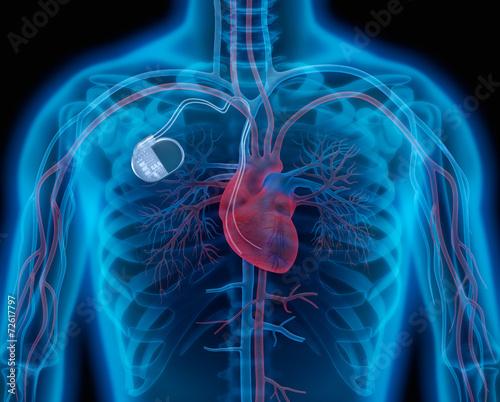 Leinwanddruck Bild Herzschrittmacher