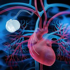 Herzschrittmacher Closeup 2