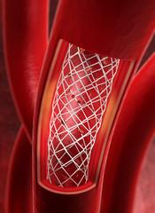 Arterie mit Stent
