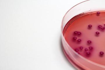細菌検査 大腸菌