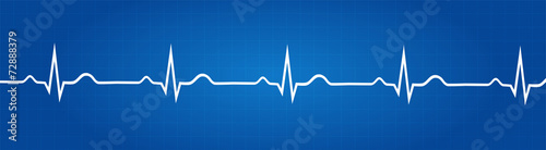 Zdjęcia na płótnie, fototapety, obrazy : Blueprint Of Normal Electrocardiogram Graphic