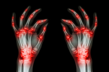 multiple joint arthritis both adult hands ( Gout , Rheumatoid )