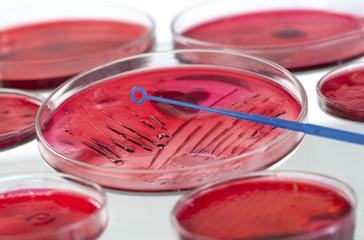 REPIQUAGE MICROBIOLOGIE