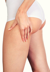 Cellulite skin at woman buttocks isolated on white