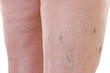 Close-up of legs with varicose veins - 73000562