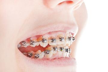 dental braces on teeth close up