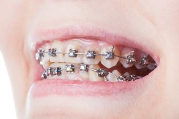 dental steel brackets on teeth close up