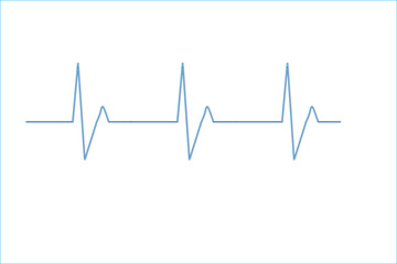 EKG white background
