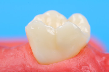 tooth in gum