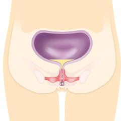 Blaseninkontinenz