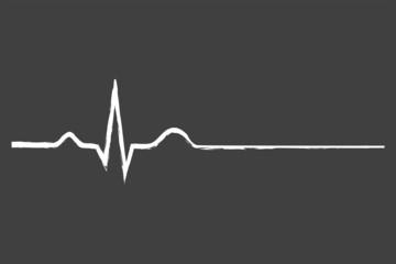 Electrocardiogram Last Life Sign On Blackboard