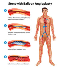 Stent angioplasty procedure