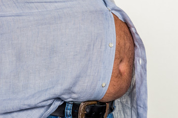 Mann mit Übergewicht