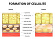 Formation of cellulite - 73406701