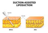 liposuction poster