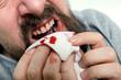 canvas print picture - Mann leidet an Zahnfleischbluten