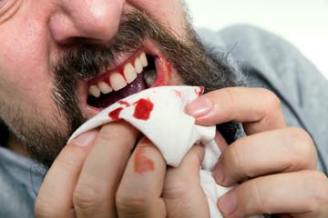 Mann leidet an Zahnfleischbluten