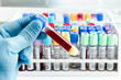 laboratory technician holding a blood tube test - 73488967