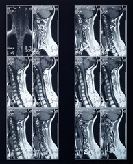 X-ray spine and neck radiography