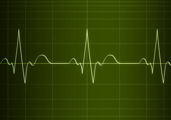Cardiogramm