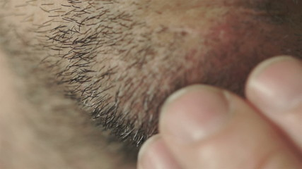 Male Rubs Facial Whiskers Macro