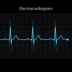 Electrocardiogram 2d illustration