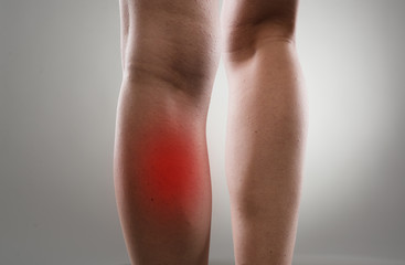 Injured female legs with red spots. Muscle strain and stretch