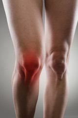 Sore woman's knee with red spot. Joint illness or disease.