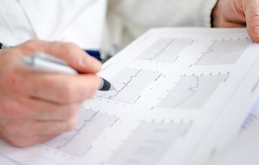 Doctor analyzing electrocardiogram