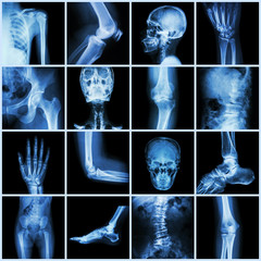 Collection human joint