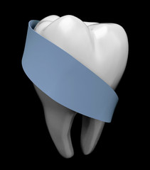 molar tooth protected by blue ribbon