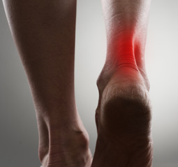 Painful ankle with red spot on woman's foot. Arthritis concept.