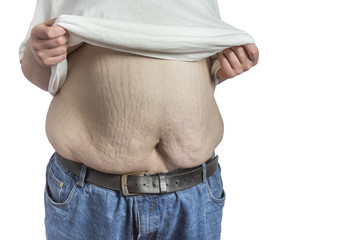overweight Man in blue jeans lifting white shirt