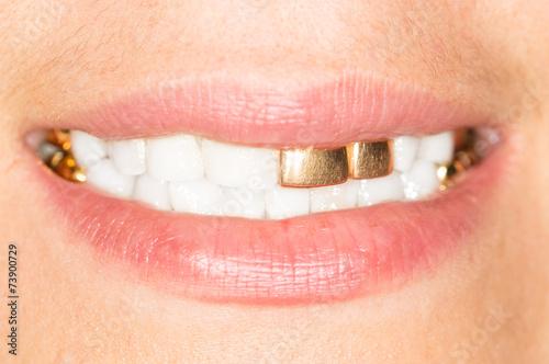 gold teeth girl Poster