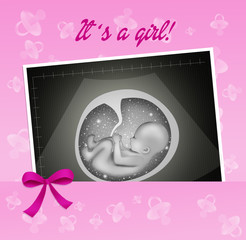 echography for baby girl