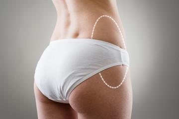 Female's drawn problem zone of body for liposuction.